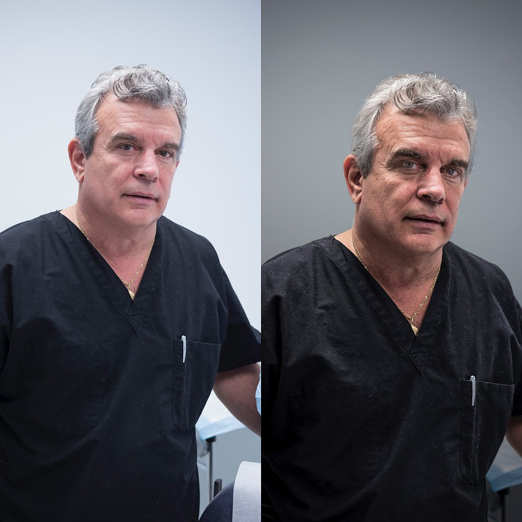 Doc Perri.  Before and after.